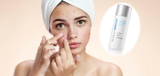 Vyhrajte nový produkt, který vám pomůže v boji proti akné.